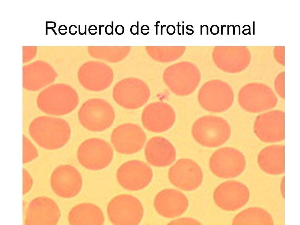 Recuerdo de frotis normal