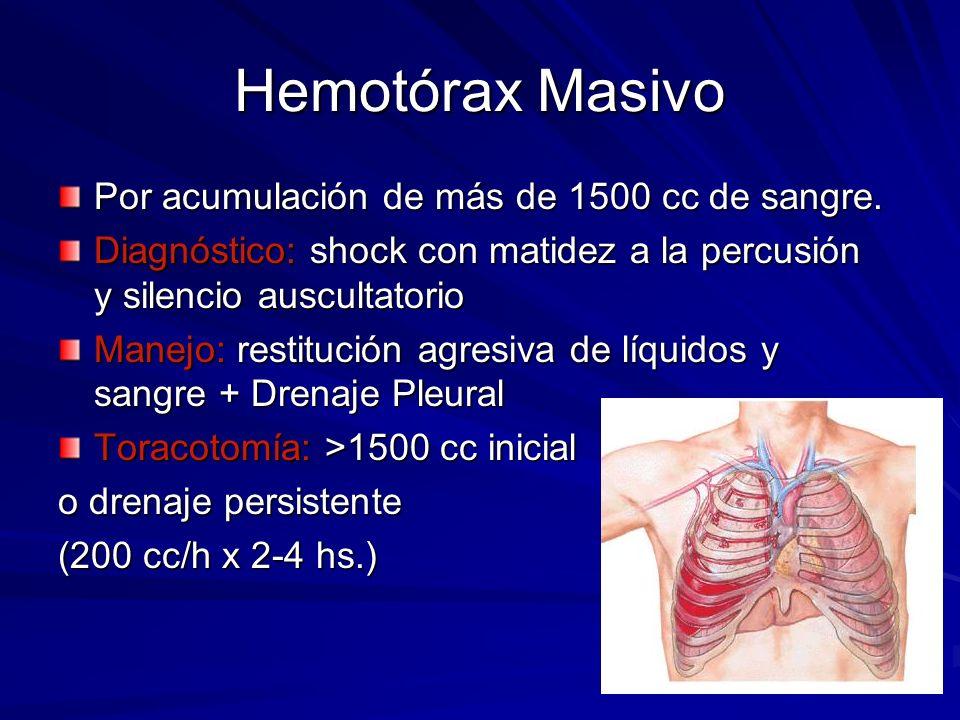 Hemotórax Masivo Por acumulación de más de 1500 cc de sangre. Diagnóstico: shock con matidez a la percusión y silencio auscultatorio Manejo: restituci