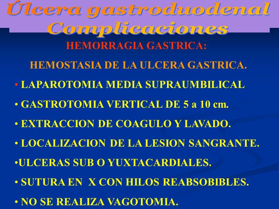 HEMORRAGIA GASTRICA: HEMOSTASIA DE LA ULCERA GASTRICA. LAPAROTOMIA MEDIA SUPRAUMBILICAL GASTROTOMIA VERTICAL DE 5 a 10 cm. EXTRACCION DE COAGULO Y LAV