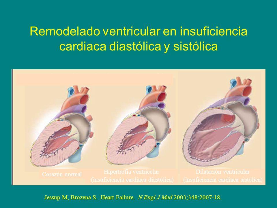 Remodelado ventricular en insuficiencia cardiaca diastólica y sistólica Corazón normal Hipertrofia ventricular (insuficiencia cardiaca diastólica) Dil