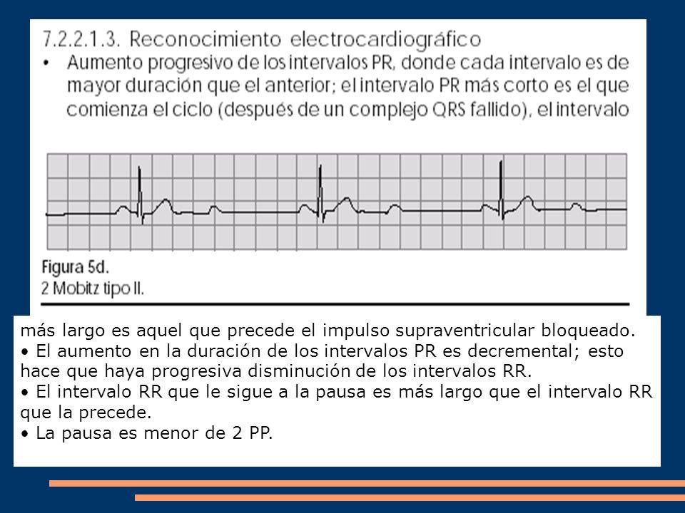 más largo es aquel que precede el impulso supraventricular bloqueado. El aumento en la duración de los intervalos PR es decremental; esto hace que hay