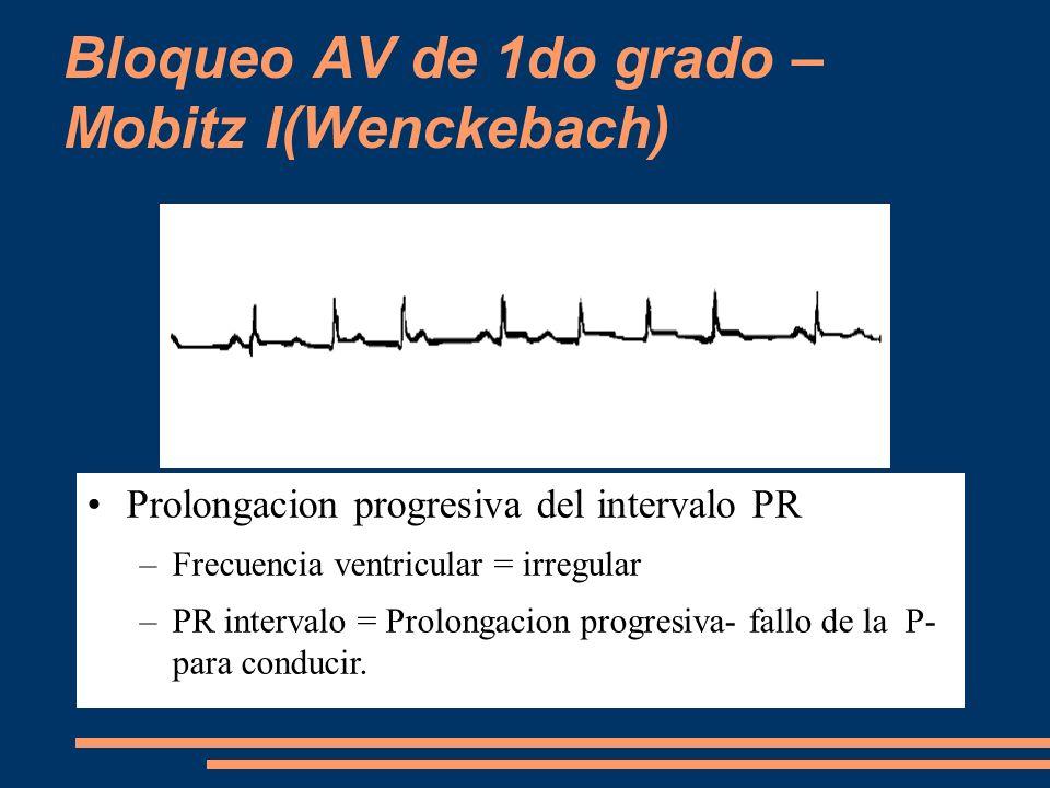 Bloqueo AV de 1do grado – Mobitz I(Wenckebach) Prolongacion progresiva del intervalo PR –Frecuencia ventricular = irregular –PR intervalo = Prolongaci