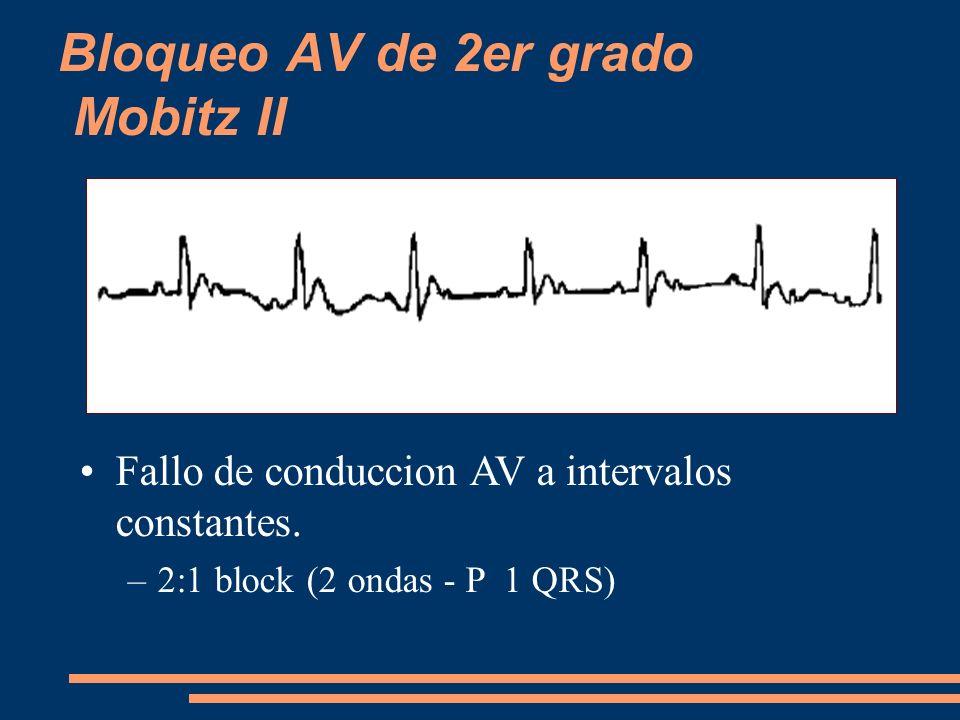 Bloqueo AV de 2er grado Mobitz II Fallo de conduccion AV a intervalos constantes. –2:1 block (2 ondas - P 1 QRS)