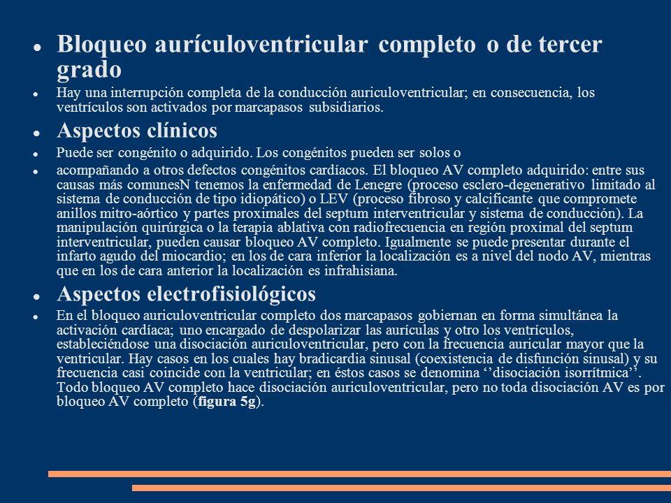 Bloqueo aurículoventricular completo o de tercer grado Hay una interrupción completa de la conducción auriculoventricular; en consecuencia, los ventrí