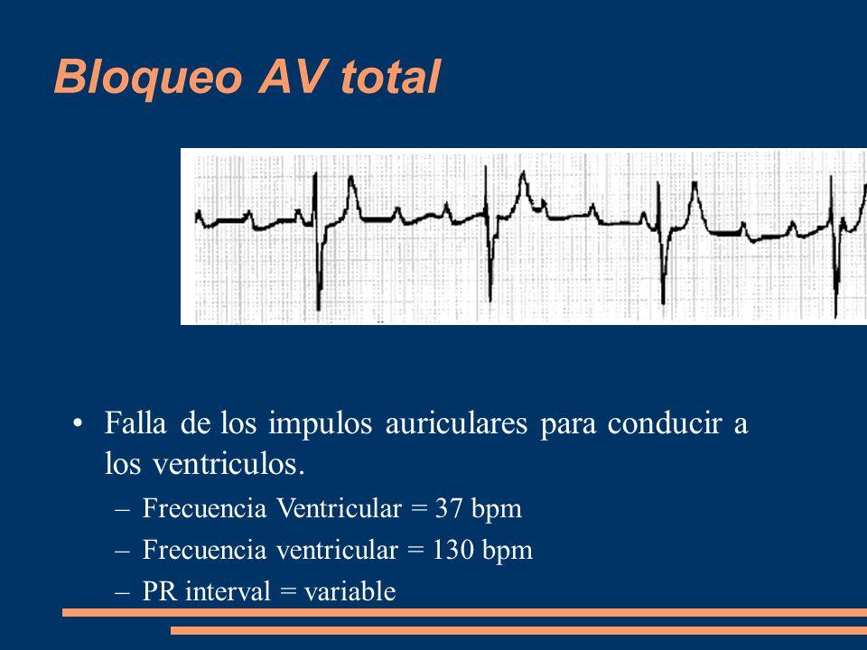 Bloqueo AV total Falla de los impulos auriculares para conducir a los ventriculos. –Frecuencia Ventricular = 37 bpm –Frecuencia ventricular = 130 bpm