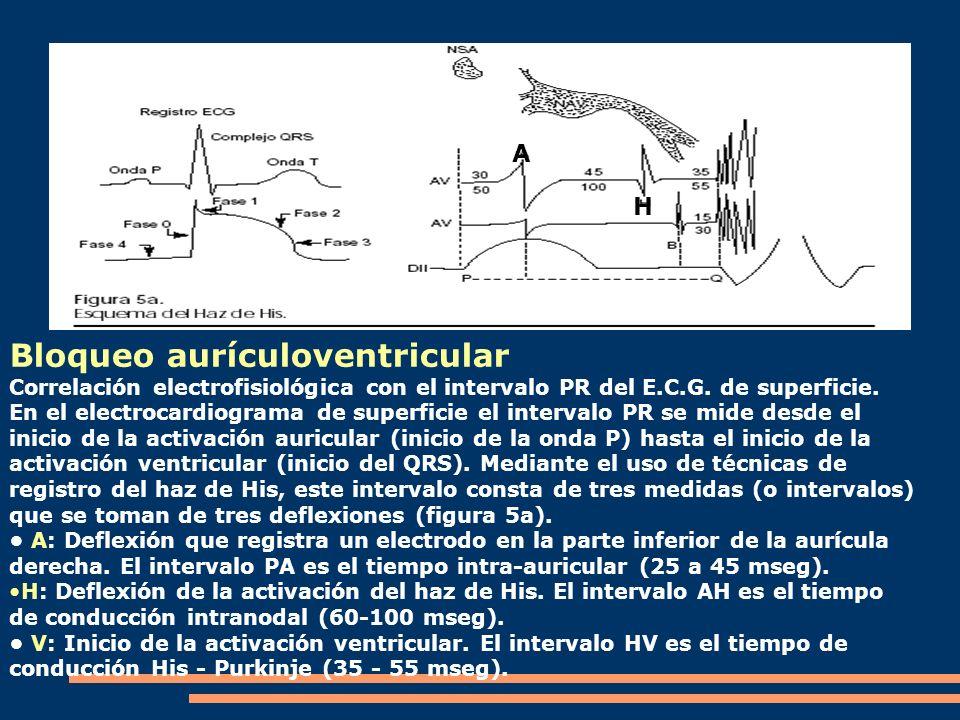 Bloqueo aurículoventricular Correlación electrofisiológica con el intervalo PR del E.C.G. de superficie. En el electrocardiograma de superficie el int
