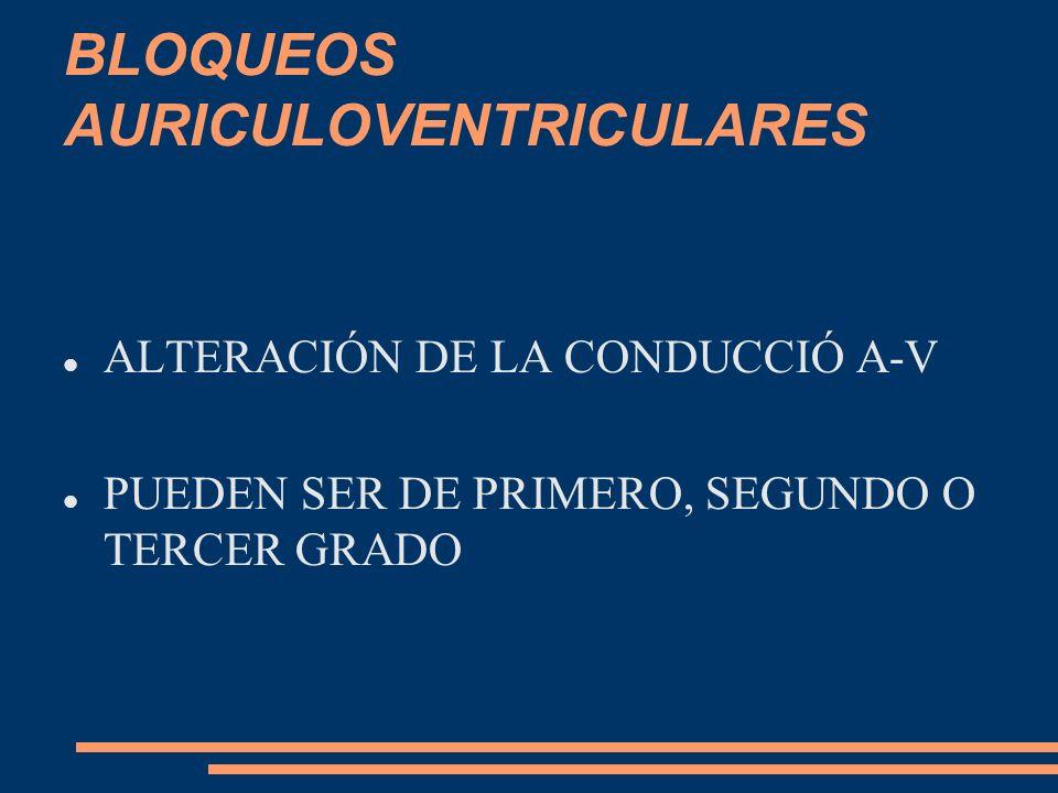 Bloqueo aurículoventricular completo o de tercer grado Hay una interrupción completa de la conducción auriculoventricular; en consecuencia, los ventrículos son activados por marcapasos subsidiarios.