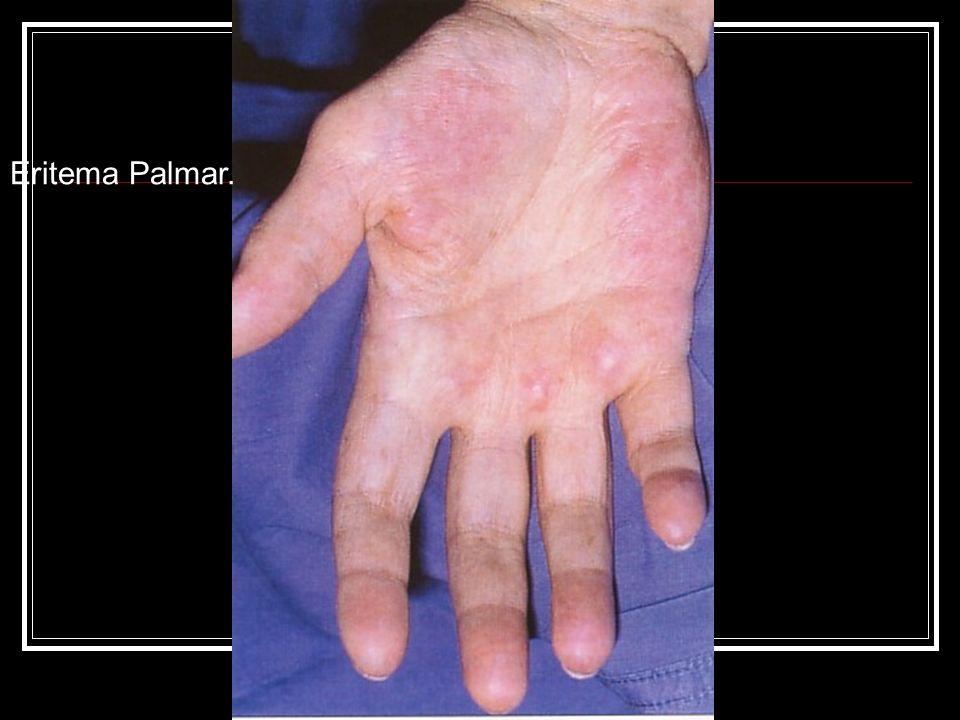 Alteraciones endocrinas.Cirrosis sintomática. 3 - Alteraciones endocrinas.