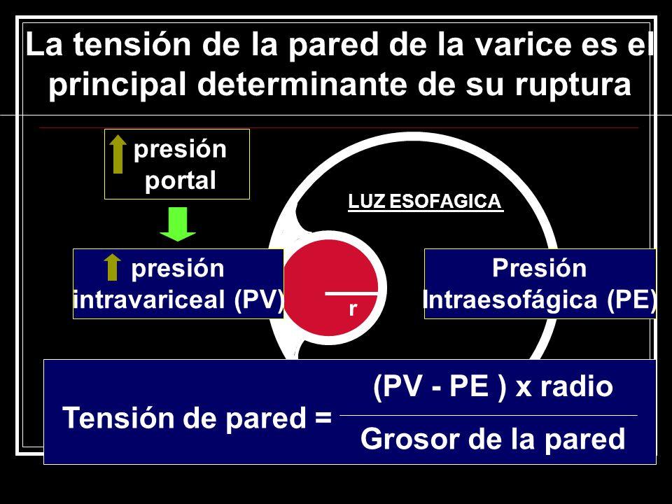 La tensión de la pared de la varice es el principal determinante de su ruptura LUZ ESOFAGICA r presión intravariceal (PV) Tensión de pared = (PV - PE