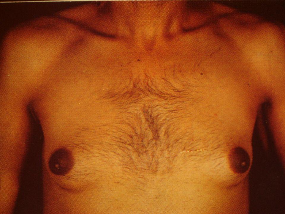 Cirrosis sintomática.5 - Sindrome hemorragíparo. 4 Petequias.