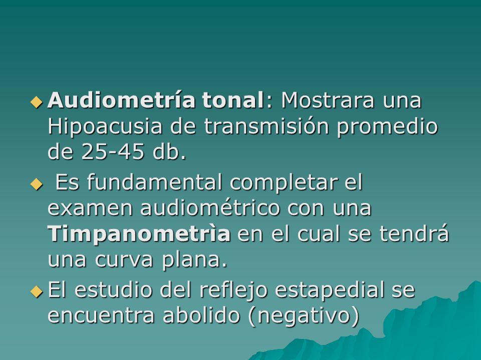 Audiometría tonal: Mostrara una Hipoacusia de transmisión promedio de 25-45 db. Audiometría tonal: Mostrara una Hipoacusia de transmisión promedio de