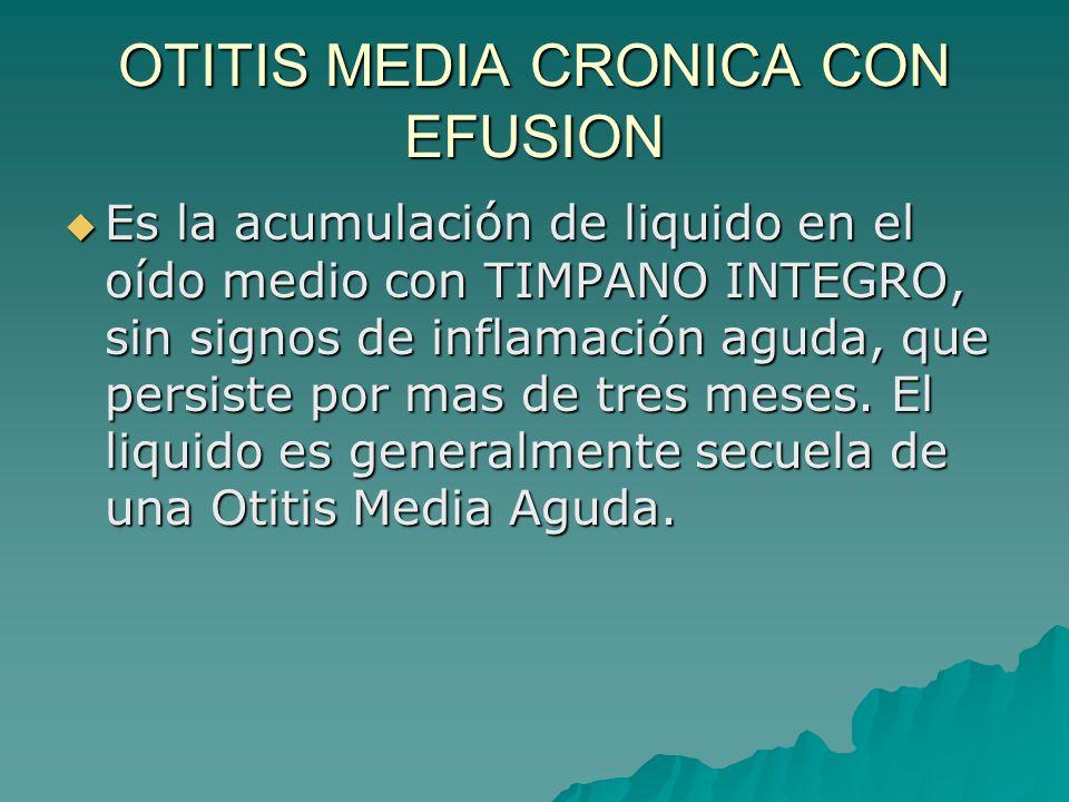 OTITIS MEDIA CRONICA CON EFUSION Es la acumulación de liquido en el oído medio con TIMPANO INTEGRO, sin signos de inflamación aguda, que persiste por