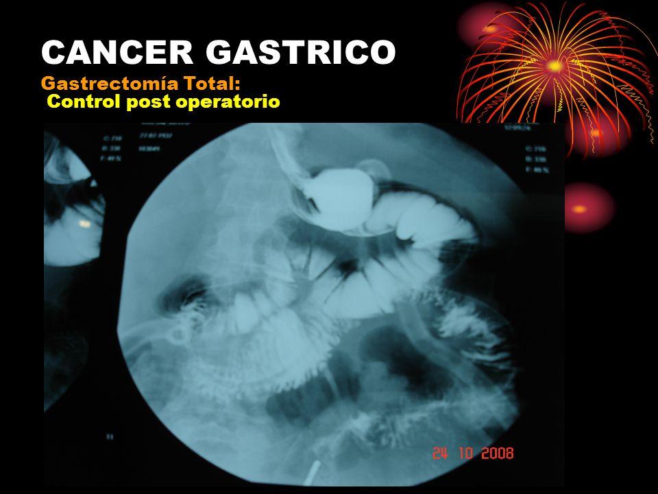 Yeyuno Esófago Duodeno Gastrectomía Total: Interposición de yeyuno; esófago-duodenal (Longmire)