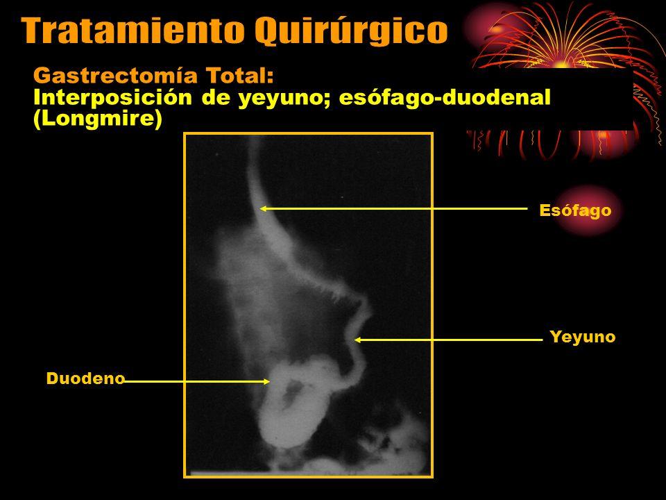 Esófago Yeyuno Duodeno Gastrectomía Total: Interposición de yeyuno; esófago-duodenal (Longmire)