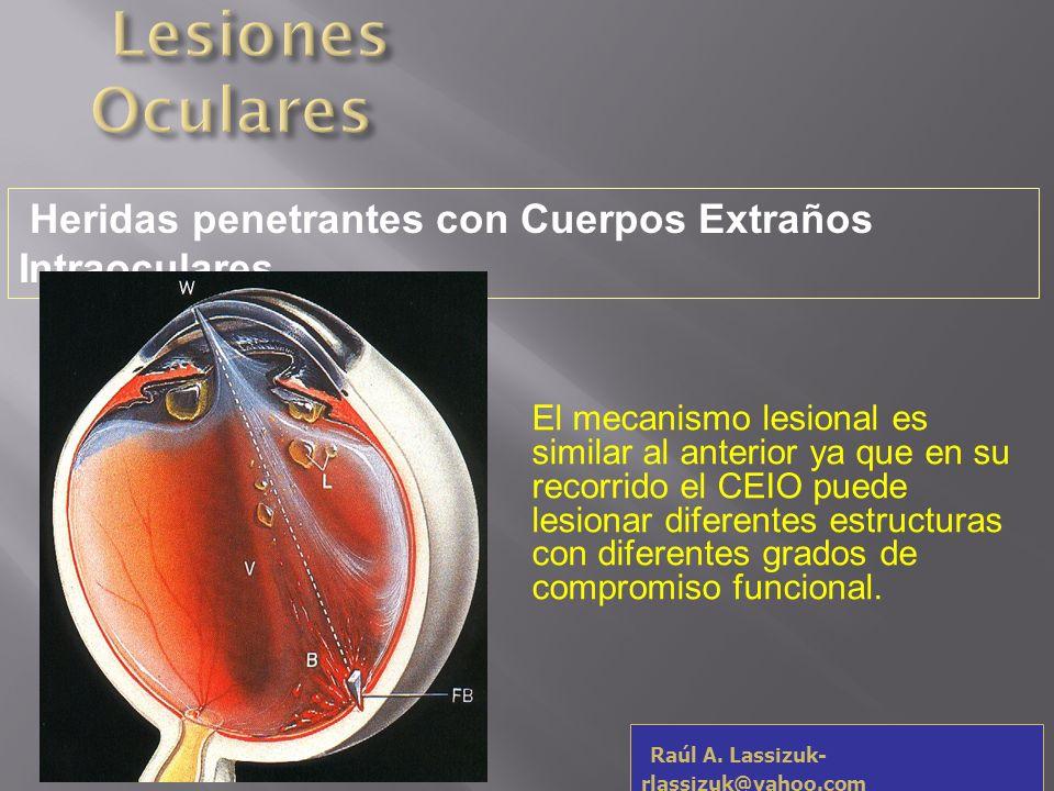 Raúl A. Lassizuk- rlassizuk@yahoo.com Úlcera trófica por Anestésico