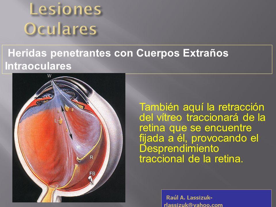 Al tratamiento de las lesiones provocadas por el CEIO habrá de sumársele la necesidad de realizar la extracción del mismo y el tratamiento quirúrgico del eventual Desprendimiento de Retina.