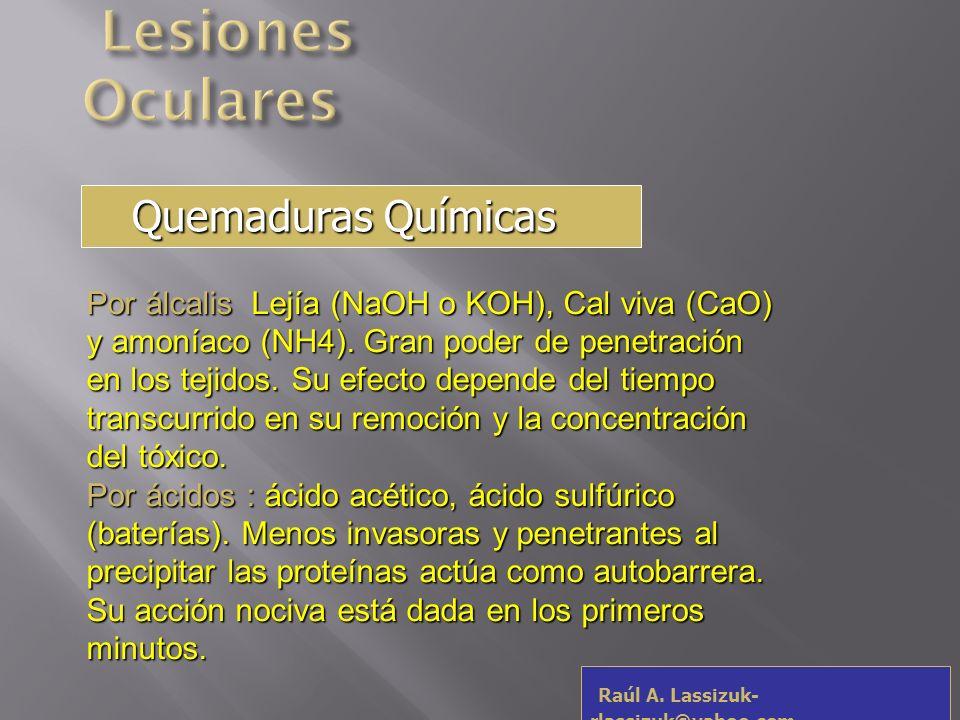 Raúl A. Lassizuk- rlassizuk@yahoo.com Quemaduras por Álcalis