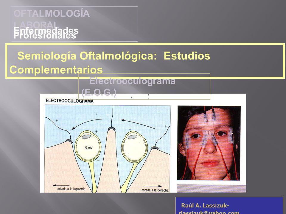 OFTALMOLOGÍA LABORAL Enfermedades Profesionales Raúl A. Lassizuk- rlassizuk@yahoo.com Semiología Oftalmológica: Estudios Complementarios Electrooculog