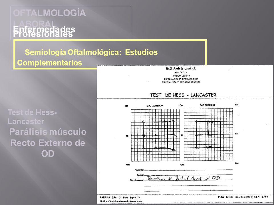 OFTALMOLOGÍA LABORAL Enfermedades Profesionales Semiología Oftalmológica: Estudios Complementarios Test de Hess- Lancaster Parálisis músculo Recto Ext