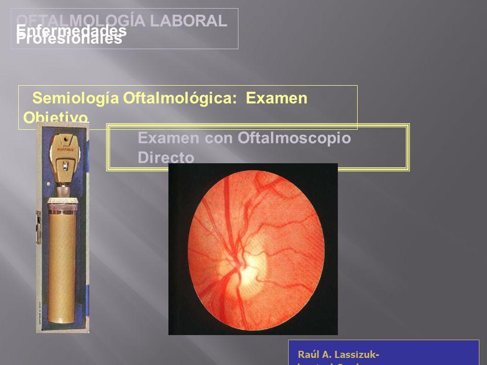 OFTALMOLOGÍA LABORAL Enfermedades Profesionales Raúl A. Lassizuk- rlassizuk@yahoo.com Examen con Oftalmoscopio Directo Semiología Oftalmológica: Exame