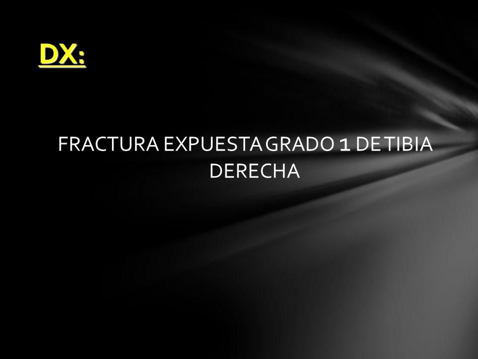 DX : FRACTURA EXPUESTA GRADO 1 DE TIBIA DERECHA
