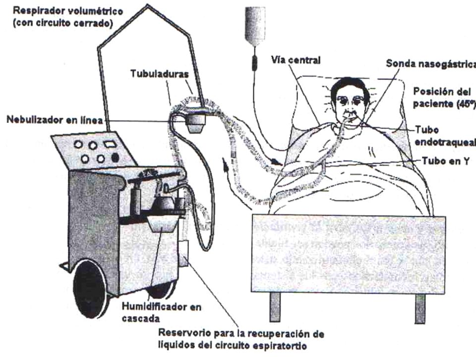 1.LAP/SDRA 2. Enfermedad obstructiva de la vía aérea 3.
