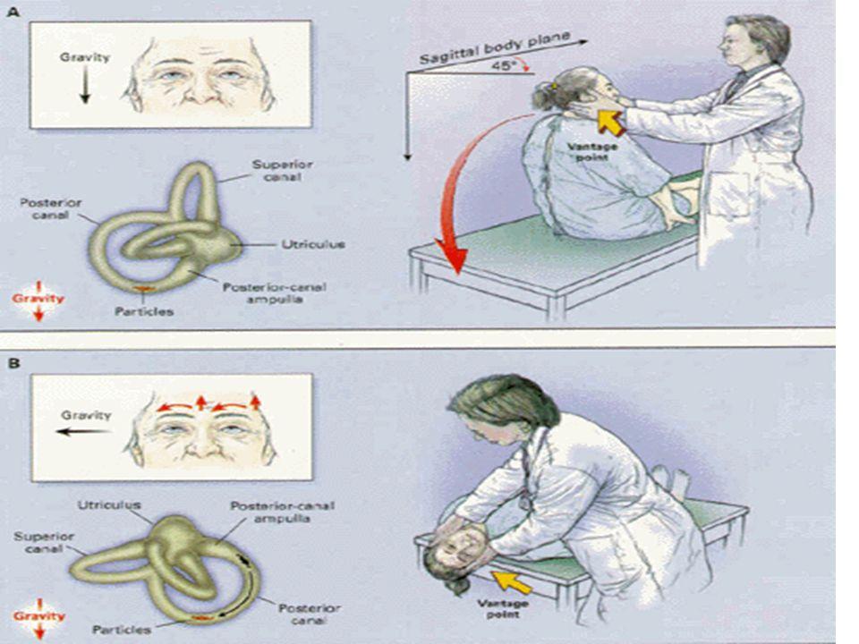 Durante la prueba puede aparecer náusea y vértigo.