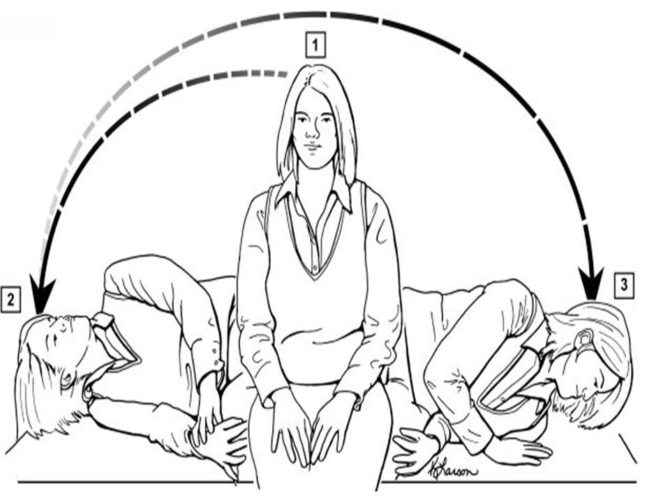 La maniobra Semont (MSM) consta de tres pasos: 1.El paciente empieza sentado en la cama con la cabeza girada 45º hacia el lado del oído afectado.