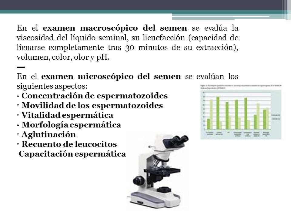 En el examen macroscópico del semen se evalúa la viscosidad del líquido seminal, su licuefacción (capacidad de licuarse completamente tras 30 minutos