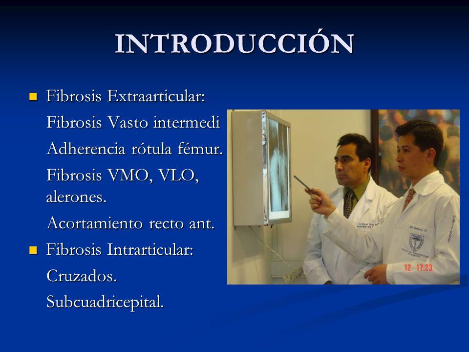 INTRODUCCIÓN Fibrosis Extraarticular: Fibrosis Extraarticular: Fibrosis Vasto intermedi Fibrosis Vasto intermedi Adherencia rótula fémur. Adherencia r