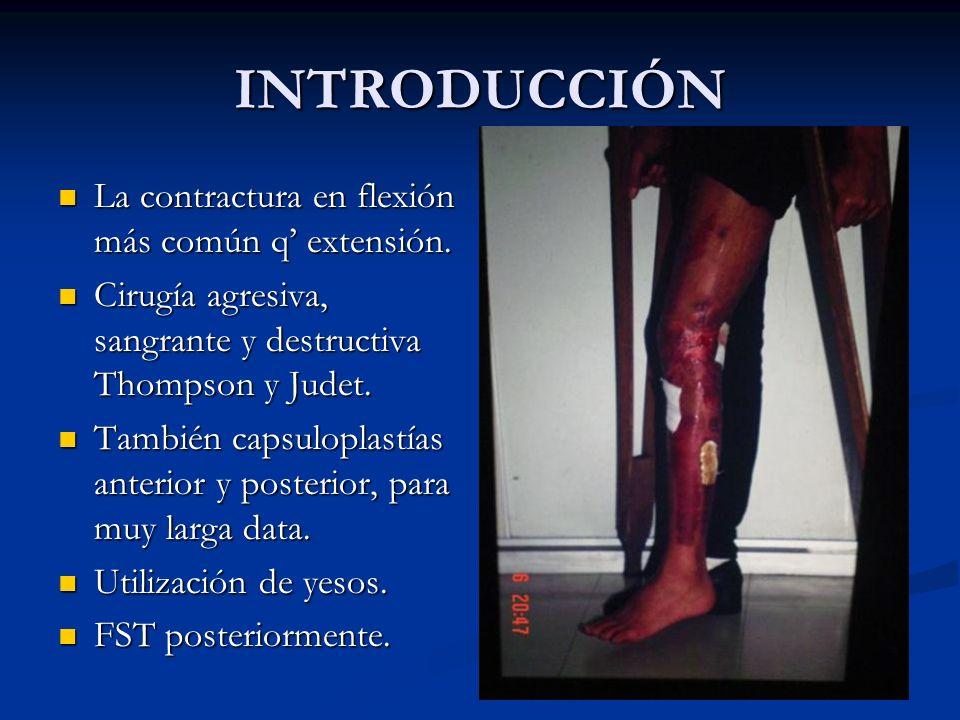 INTRODUCCIÓN La contractura en flexión más común q extensión. La contractura en flexión más común q extensión. Cirugía agresiva, sangrante y destructi