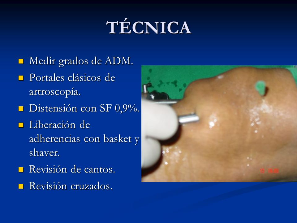 TÉCNICA Medir grados de ADM. Medir grados de ADM. Portales clásicos de artroscopía. Portales clásicos de artroscopía. Distensión con SF 0,9%. Distensi