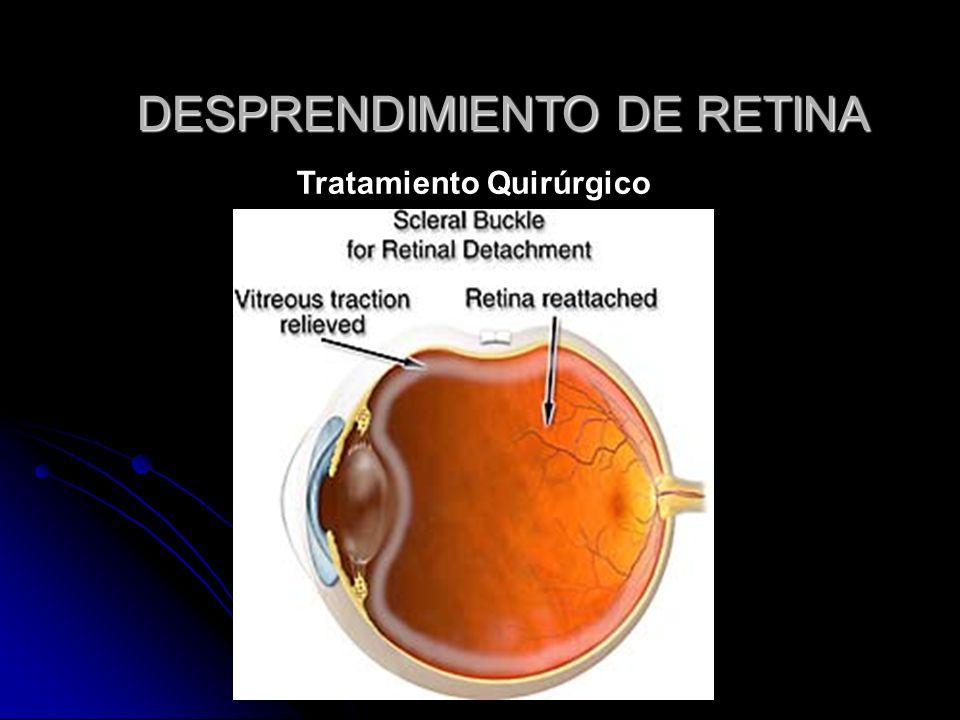 DESPRENDIMIENTO DE RETINA Tratamiento Quirúrgico