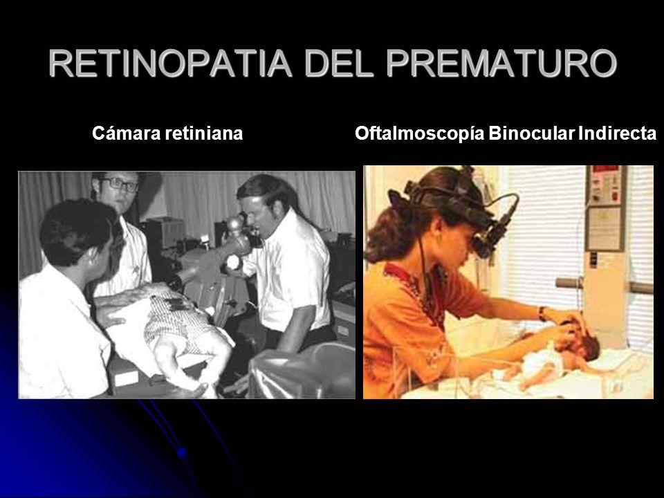Cámara retinianaOftalmoscopía Binocular Indirecta