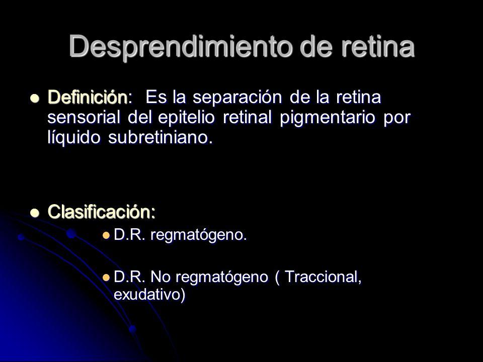Desprendimiento de retina Definición: Es la separación de la retina sensorial del epitelio retinal pigmentario por líquido subretiniano.
