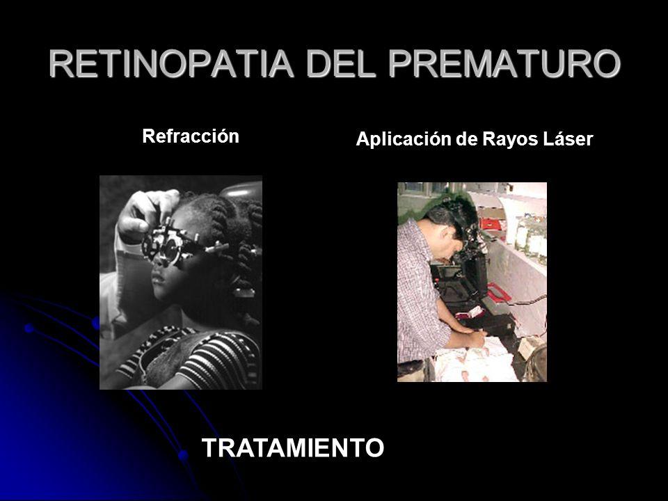 Refracción Aplicación de Rayos Láser RETINOPATIA DEL PREMATURO TRATAMIENTO