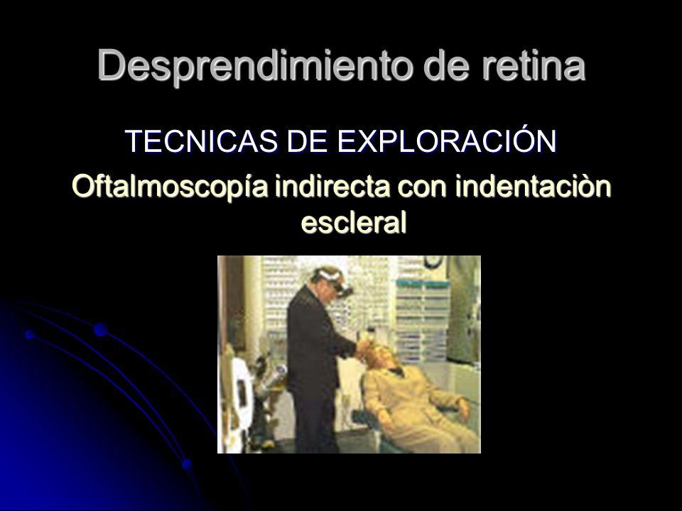 TECNICAS DE EXPLORACIÓN Oftalmoscopía indirecta con indentaciòn escleral Desprendimiento de retina