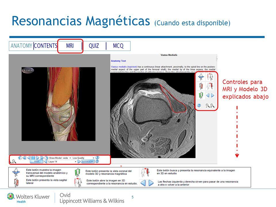 5 Resonancias Magnéticas (Cuando esta disponible) Controles para MRI y Modelo 3D explicados abajo