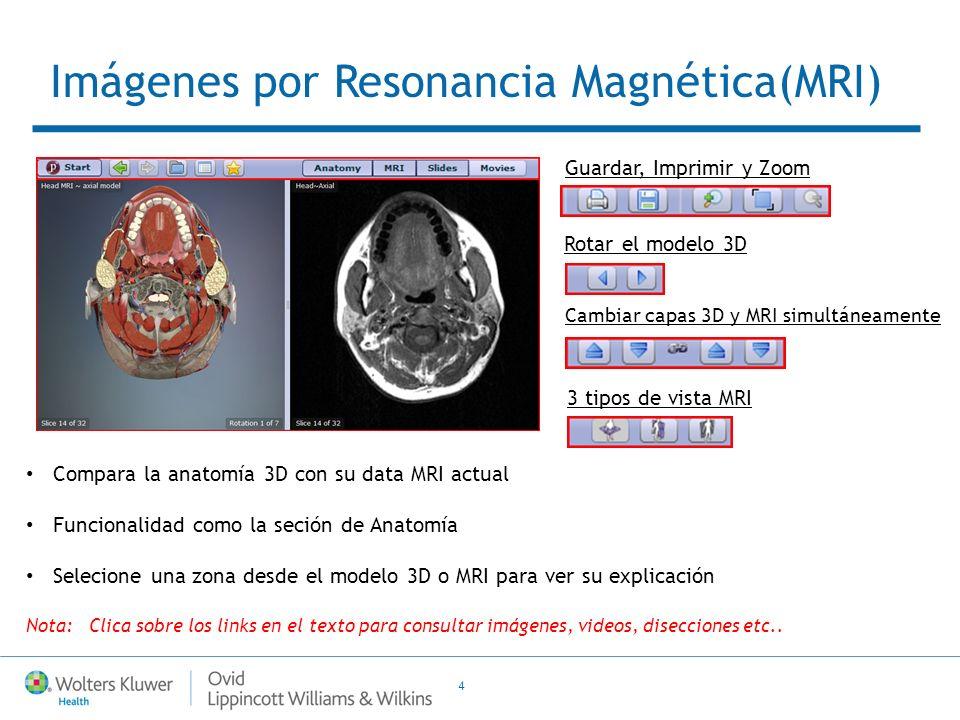4 Compara la anatomía 3D con su data MRI actual Funcionalidad como la seción de Anatomía Selecione una zona desde el modelo 3D o MRI para ver su expli
