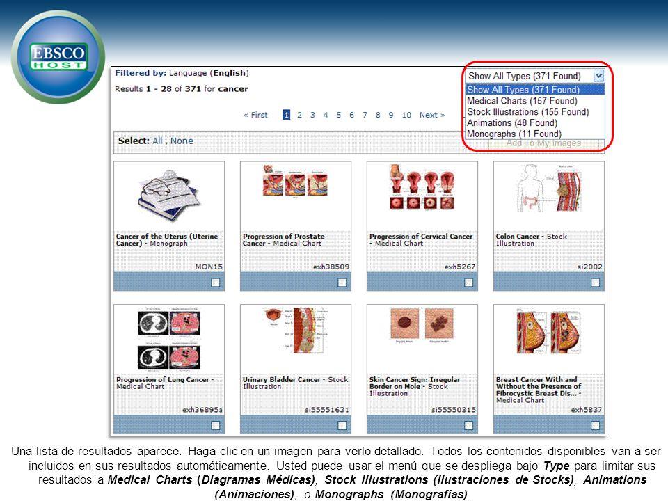 Una lista de resultados aparece. Haga clic en un imagen para verlo detallado. Todos los contenidos disponibles van a ser incluidos en sus resultados a