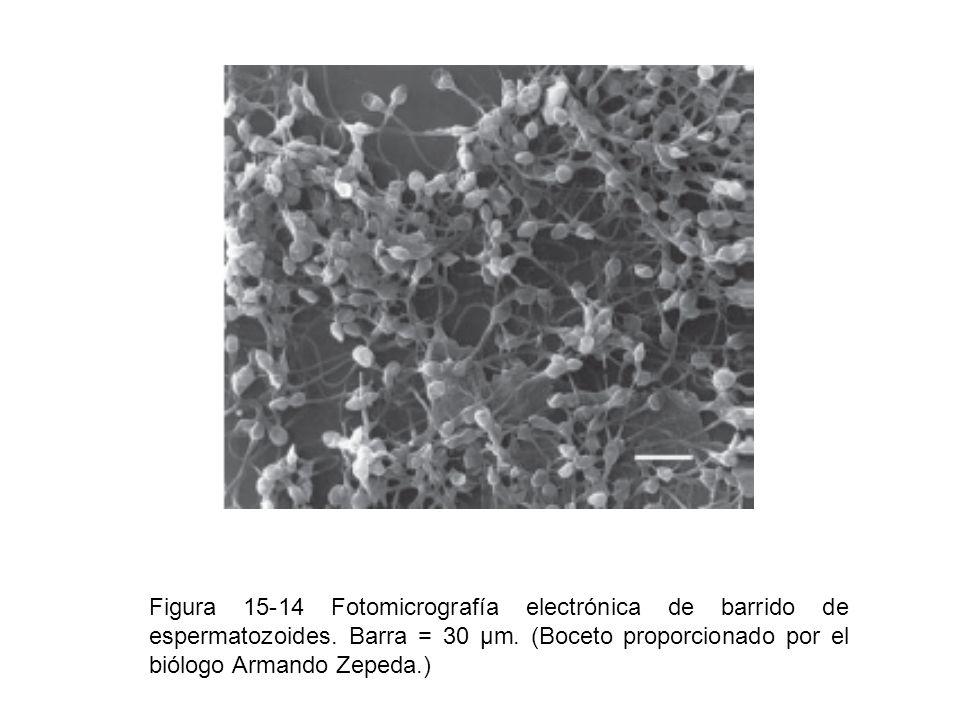 Figura 15-14 Fotomicrografía electrónica de barrido de espermatozoides. Barra = 30 μm. (Boceto proporcionado por el biólogo Armando Zepeda.)