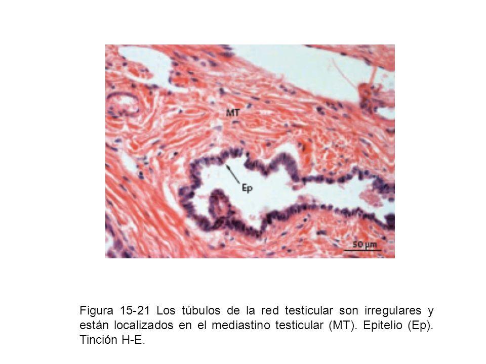 Figura 15-21 Los túbulos de la red testicular son irregulares y están localizados en el mediastino testicular (MT). Epitelio (Ep). Tinción H-E.
