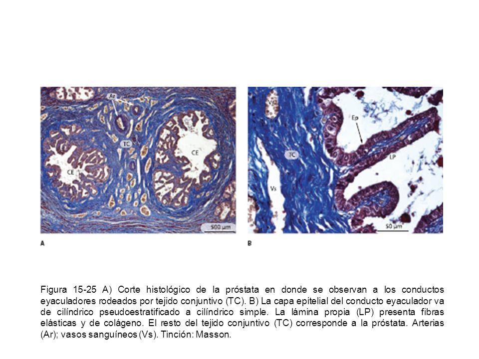 Figura 15-25 A) Corte histológico de la próstata en donde se observan a los conductos eyaculadores rodeados por tejido conjuntivo (TC). B) La capa epi
