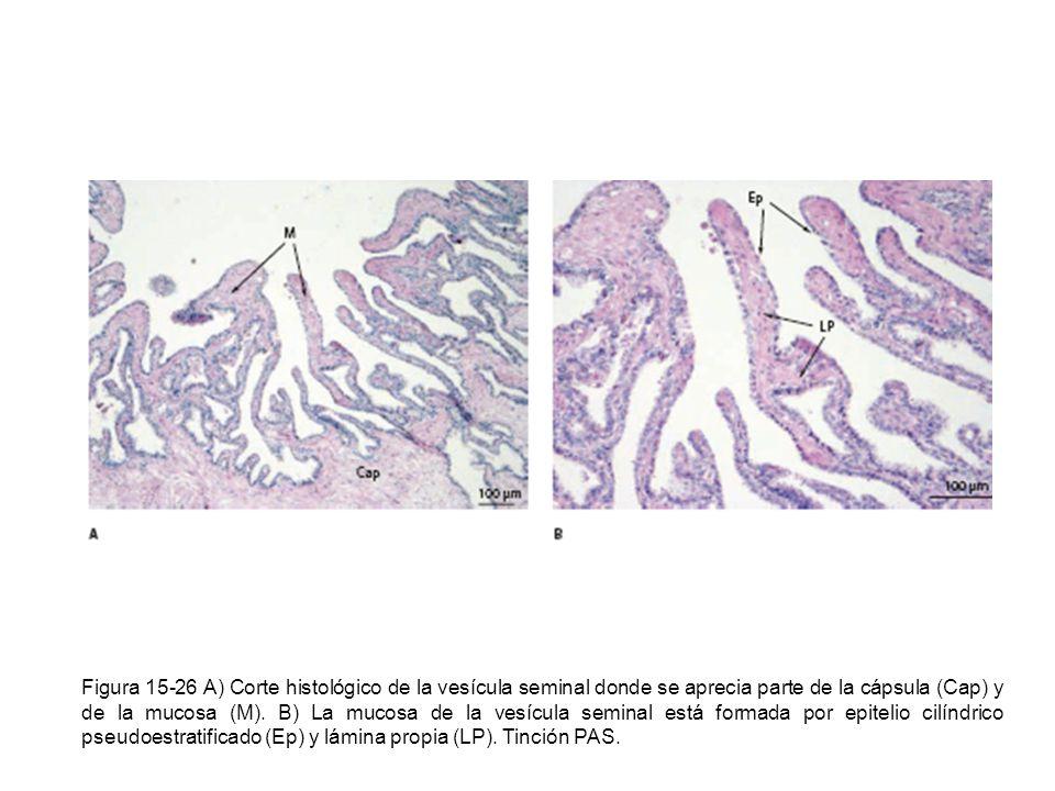 Figura 15-26 A) Corte histológico de la vesícula seminal donde se aprecia parte de la cápsula (Cap) y de la mucosa (M). B) La mucosa de la vesícula se