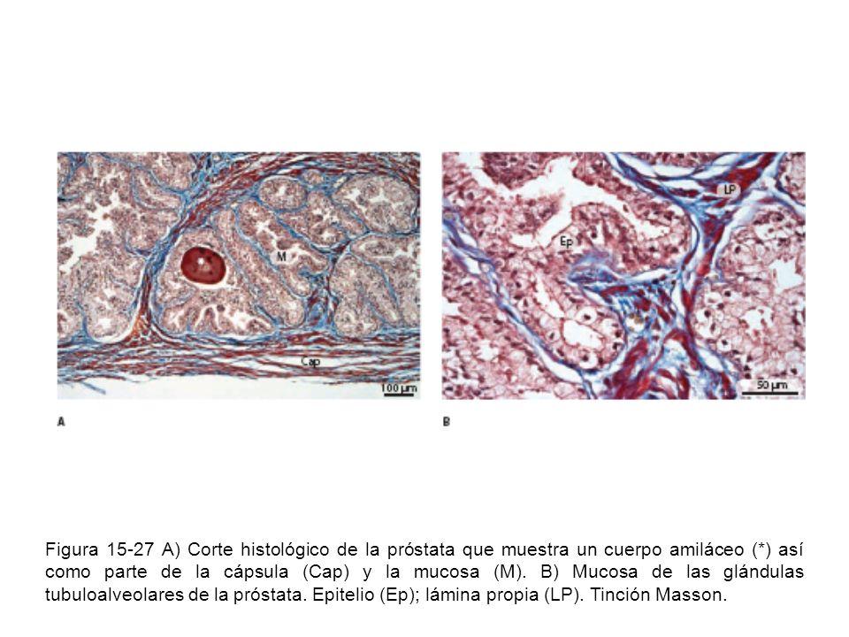 Figura 15-27 A) Corte histológico de la próstata que muestra un cuerpo amiláceo (*) así como parte de la cápsula (Cap) y la mucosa (M). B) Mucosa de l