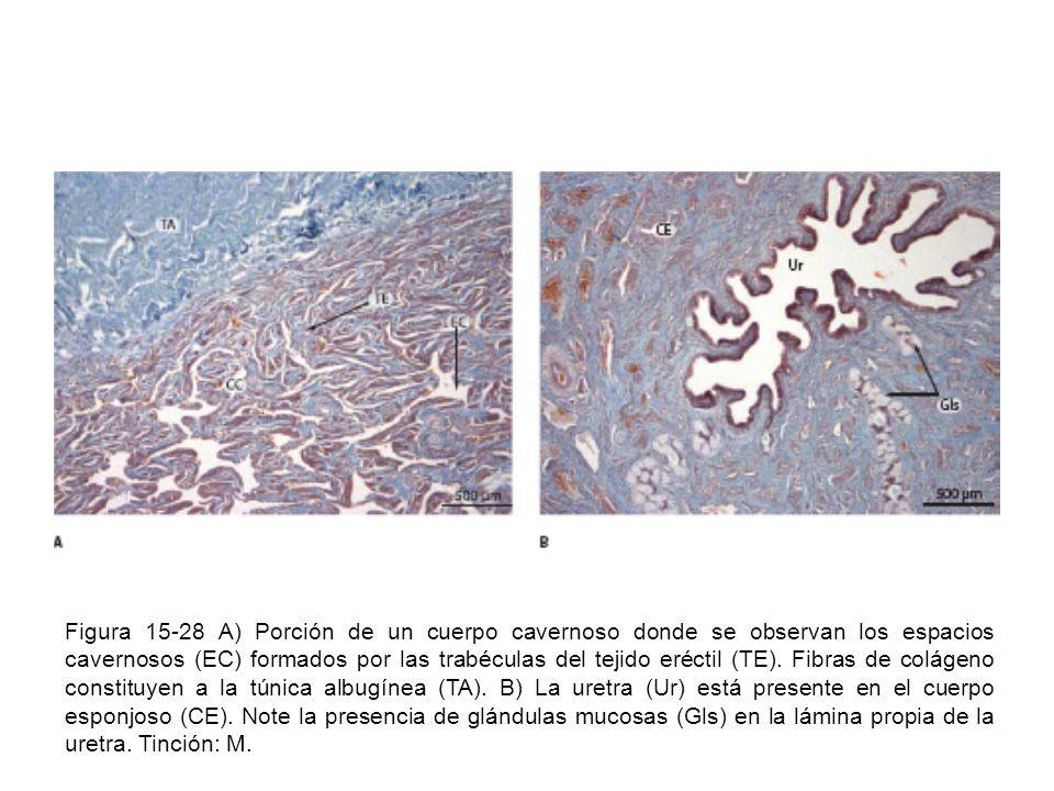 Figura 15-28 A) Porción de un cuerpo cavernoso donde se observan los espacios cavernosos (EC) formados por las trabéculas del tejido eréctil (TE). Fib