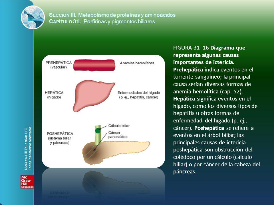 FIGURA 31–16 Diagrama que representa algunas causas importantes de ictericia. Prehepática indica eventos en el torrente sanguíneo; la principal causa