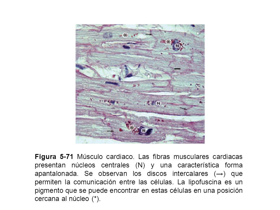 Figura 5-72 Estructura interna de las fibras musculares cardiacas.