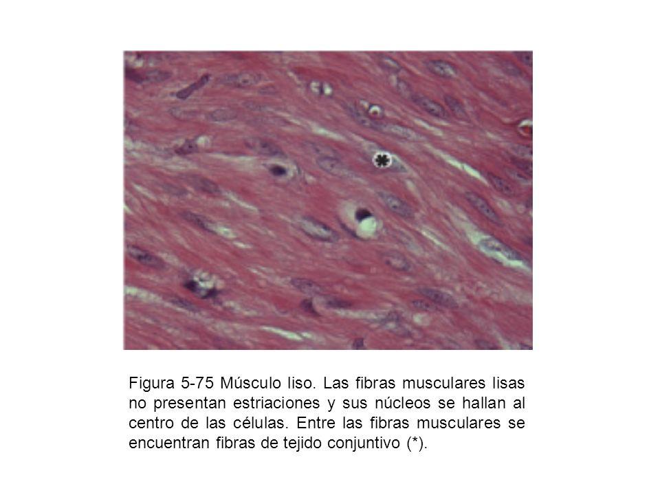 Figura 5-76 Esquema de las partes principales de una neurona típica: soma o cuerpo neuronal (pericarion), dendritas y axón.