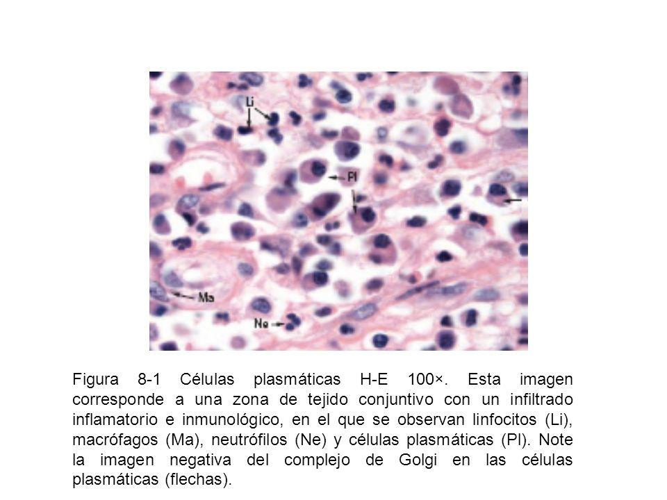 Figura 8-1 Células plasmáticas H-E 100×. Esta imagen corresponde a una zona de tejido conjuntivo con un infiltrado inflamatorio e inmunológico, en el